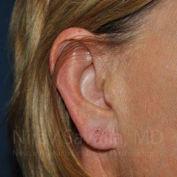Torn Earlobe Repair / Ear Gauge Repair Gallery - Patient 1655697 - Image 3