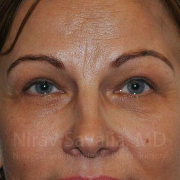 Eyelid Surgery Gallery - Patient 1655701 - Image 2