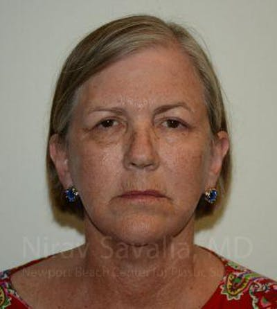 Facelift Gallery - Patient 1655699 - Image 2