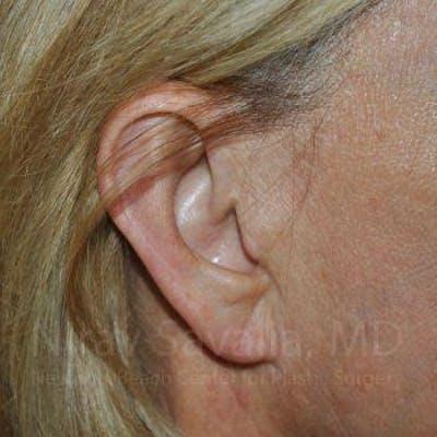 Torn Earlobe Repair / Ear Gauge Repair Gallery - Patient 1655697 - Image 4