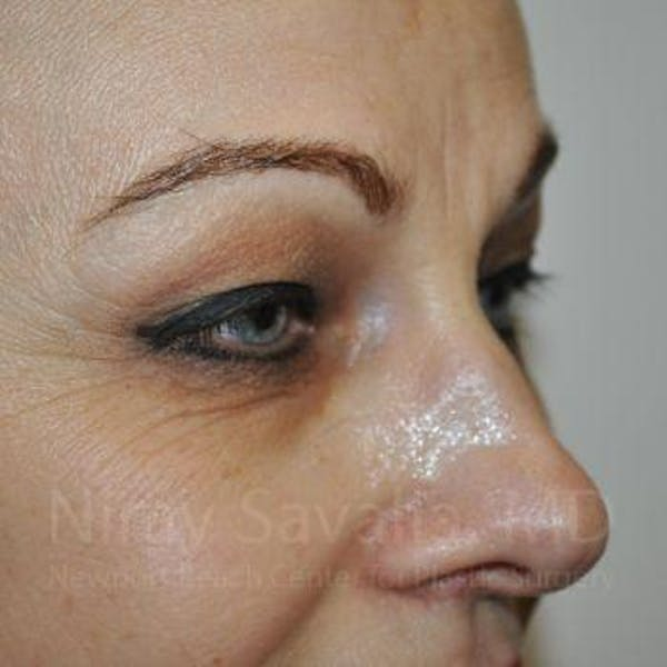 Eyelid Surgery Gallery - Patient 1655701 - Image 3