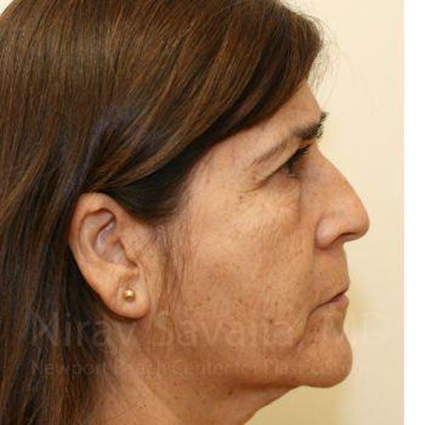 Brow Lift Gallery - Patient 1655702 - Image 3