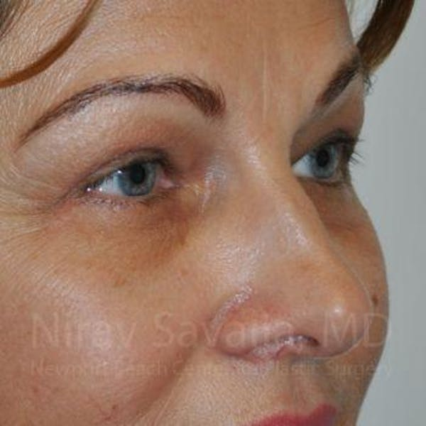 Eyelid Surgery Gallery - Patient 1655701 - Image 4