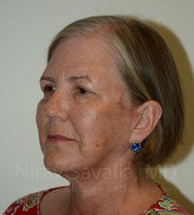 Facelift Gallery - Patient 1655699 - Image 4