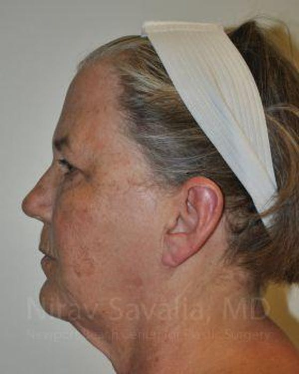 Facelift Gallery - Patient 1655699 - Image 5