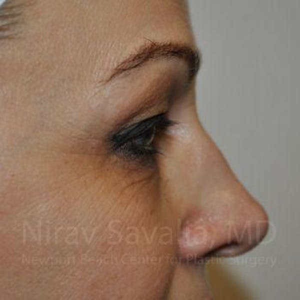 Eyelid Surgery Gallery - Patient 1655701 - Image 5