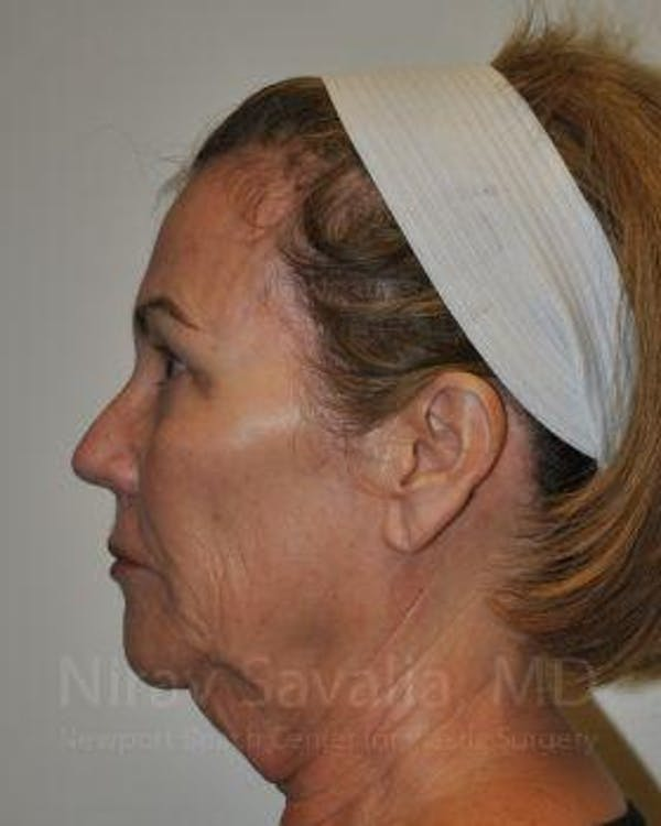 Fat Grafting to Face Gallery - Patient 1655698 - Image 7