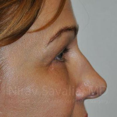 Eyelid Surgery Gallery - Patient 1655701 - Image 6