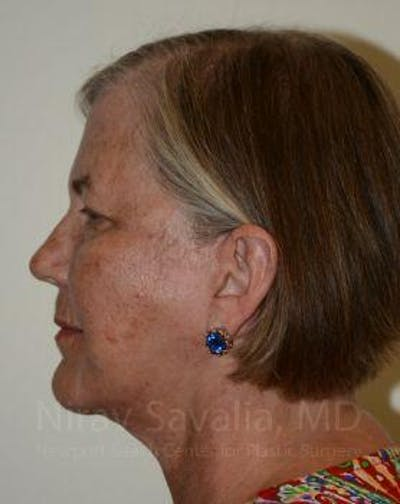 Facelift Gallery - Patient 1655699 - Image 6