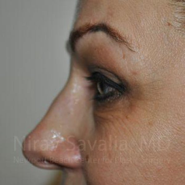Eyelid Surgery Gallery - Patient 1655701 - Image 7