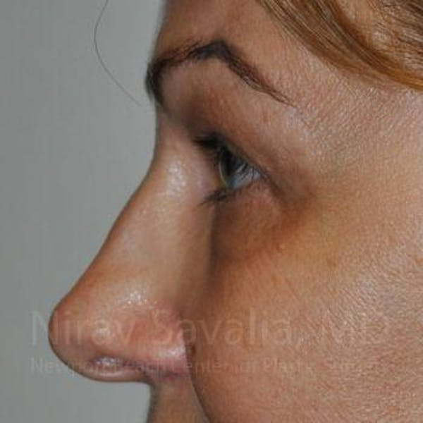 Eyelid Surgery Gallery - Patient 1655701 - Image 8