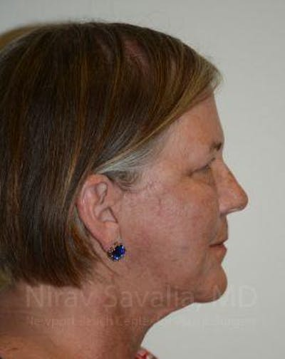 Facelift Gallery - Patient 1655699 - Image 8