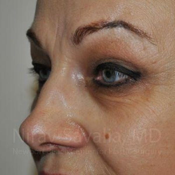 Eyelid Surgery Gallery - Patient 1655701 - Image 9