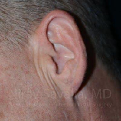 Torn Earlobe Repair / Ear Gauge Repair Gallery - Patient 1655700 - Image 2