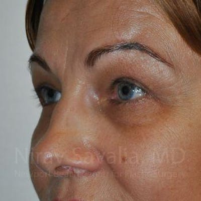 Eyelid Surgery Gallery - Patient 1655701 - Image 10