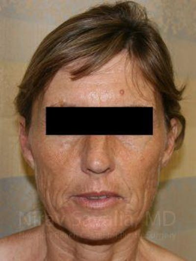Facelift Gallery - Patient 1655704 - Image 1