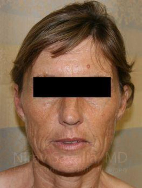 Facelift Gallery - Patient 1655704 - Image 1