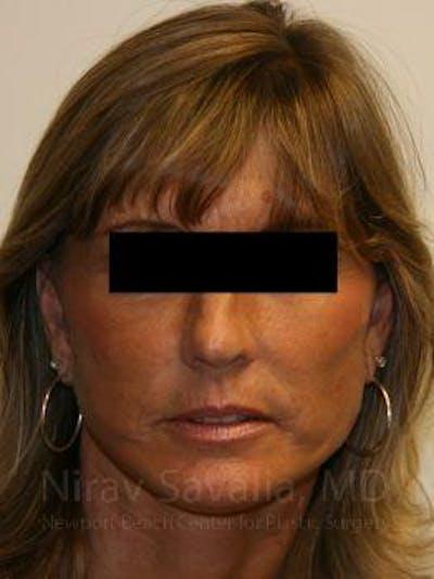 Facelift Gallery - Patient 1655704 - Image 2