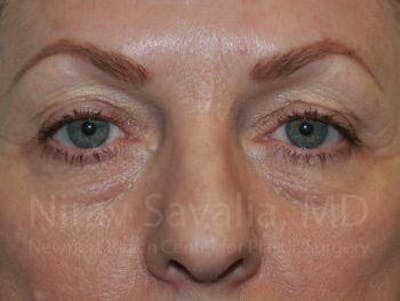 Eyelid Surgery Gallery - Patient 1655707 - Image 1