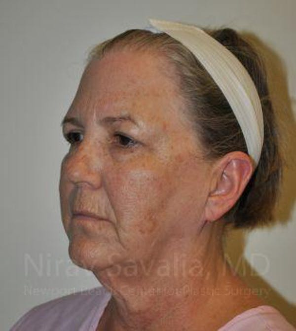 Fat Grafting to Face Gallery - Patient 1655705 - Image 3