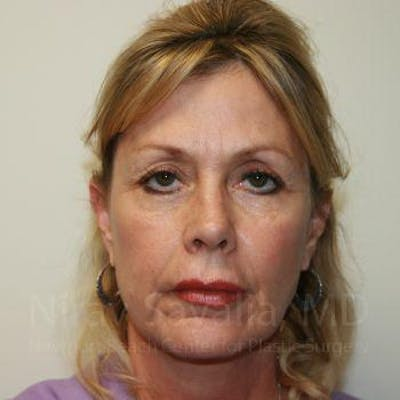 Brow Lift Gallery - Patient 1655706 - Image 1