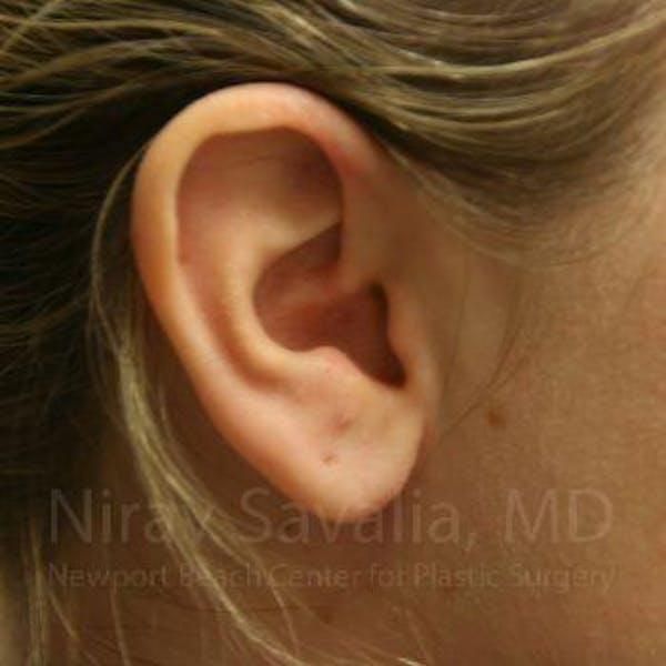Torn Earlobe Repair / Ear Gauge Repair Gallery - Patient 1655703 - Image 2