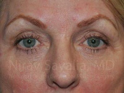 Eyelid Surgery Gallery - Patient 1655707 - Image 2