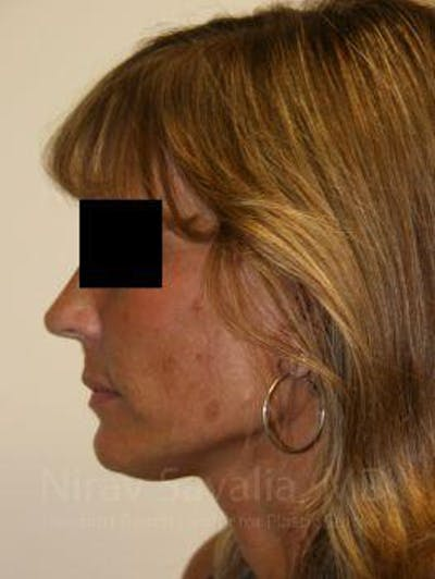 Facelift Gallery - Patient 1655704 - Image 4