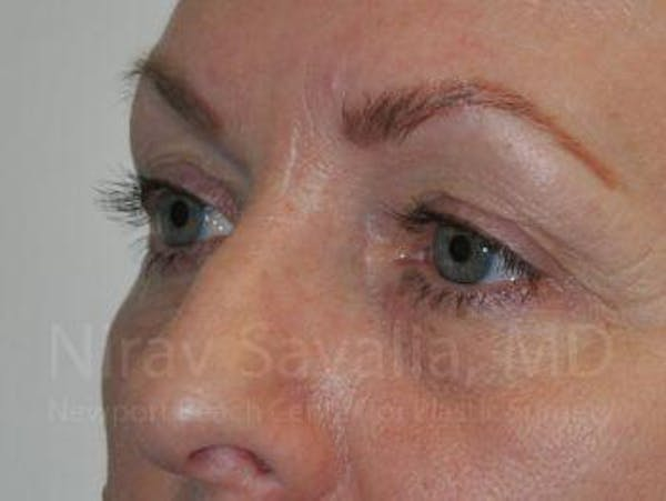 Eyelid Surgery Gallery - Patient 1655707 - Image 3