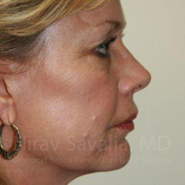 Brow Lift Gallery - Patient 1655706 - Image 3