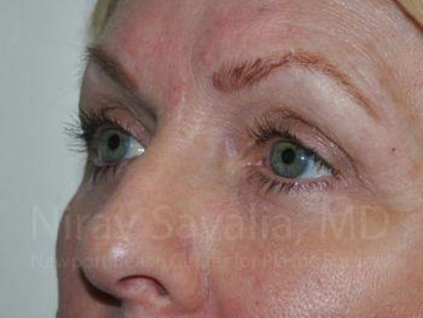 Eyelid Surgery Gallery - Patient 1655707 - Image 4