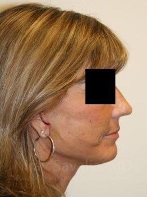 Facelift Gallery - Patient 1655704 - Image 6