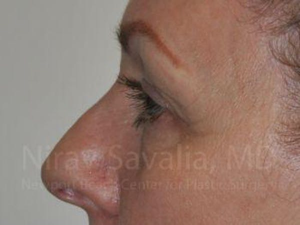 Eyelid Surgery Gallery - Patient 1655707 - Image 5