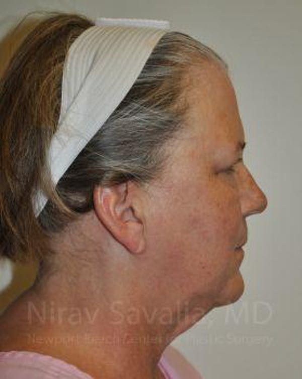 Fat Grafting to Face Gallery - Patient 1655705 - Image 7