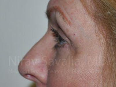 Eyelid Surgery Gallery - Patient 1655707 - Image 6