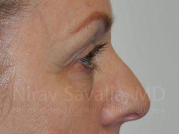 Eyelid Surgery Gallery - Patient 1655707 - Image 7