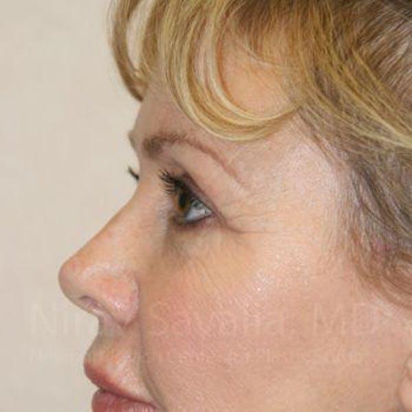 Brow Lift Gallery - Patient 1655706 - Image 6