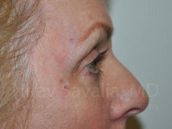 Eyelid Surgery Gallery - Patient 1655707 - Image 8
