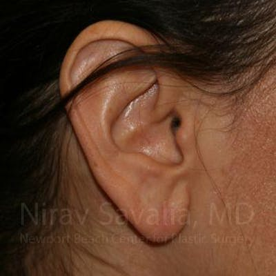 Torn Earlobe Repair / Ear Gauge Repair Gallery - Patient 1655708 - Image 2