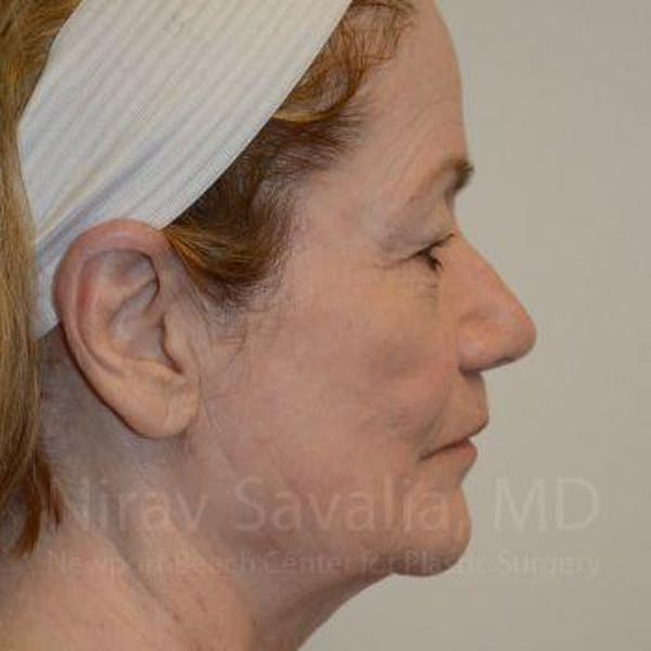 Fat Grafting to Face Gallery - Patient 1655710 - Image 5