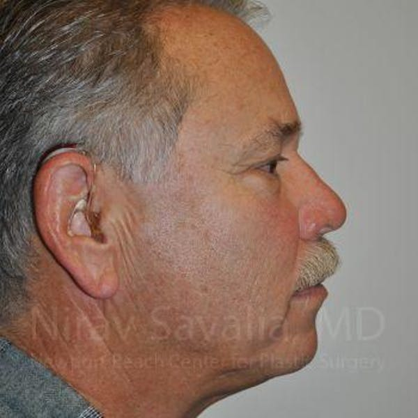 Eyelid Surgery Gallery - Patient 1655711 - Image 3