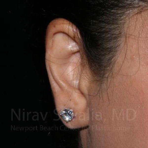 Torn Earlobe Repair / Ear Gauge Repair Gallery - Patient 1655709 - Image 2