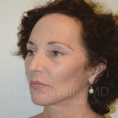 Facelift Gallery - Patient 1655712 - Image 6