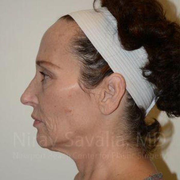 Facelift Gallery - Patient 1655712 - Image 9