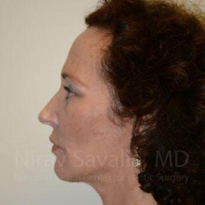 Facelift Gallery - Patient 1655712 - Image 10