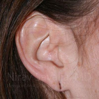 Torn Earlobe Repair / Ear Gauge Repair Gallery - Patient 1655713 - Image 1