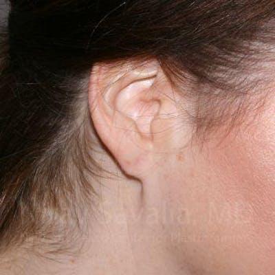 Torn Earlobe Repair / Ear Gauge Repair Gallery - Patient 1655713 - Image 2
