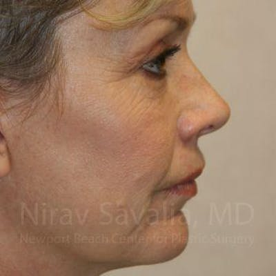 Eyelid Surgery Gallery - Patient 1655714 - Image 4
