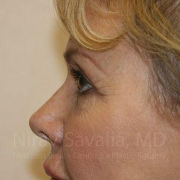 Eyelid Surgery Gallery - Patient 1655714 - Image 5