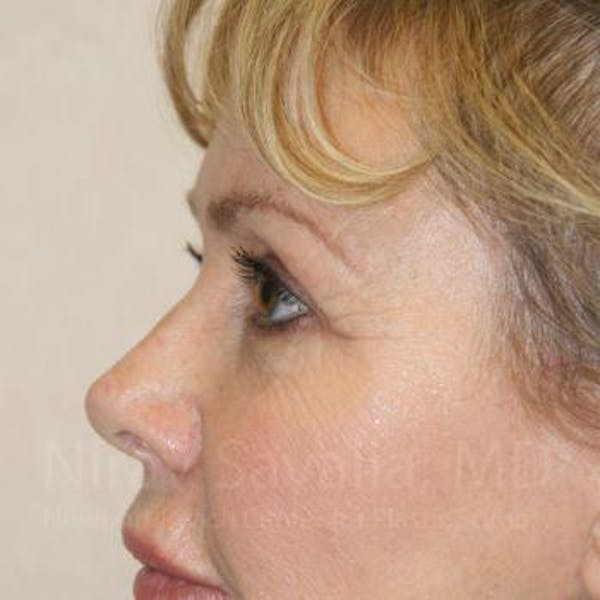 Eyelid Surgery Gallery - Patient 1655714 - Image 6